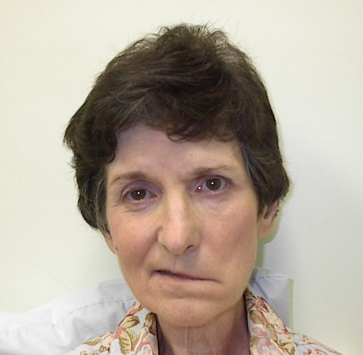 Acupuncture bells palsy study