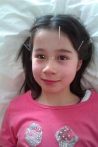 Child Acupuncture